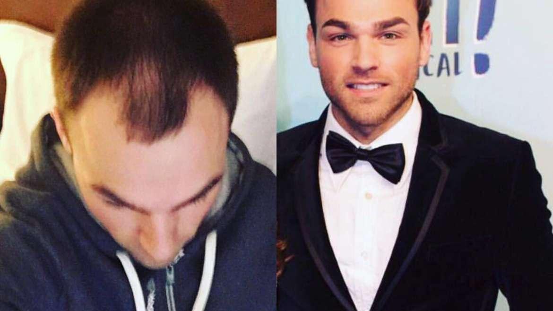 Jamie & his hair transplant journey