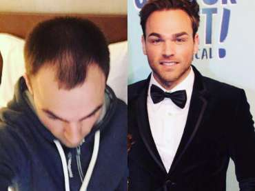 Jamie & his hair transplant journey